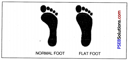 PSEB 7th Class Physical Education Solutions Chapter 3 Posture and Its Deformities 4