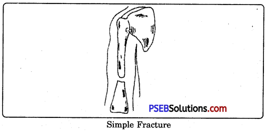 PSEB 9th Class Physical Education Solutions Chapter 4 First Aid 1