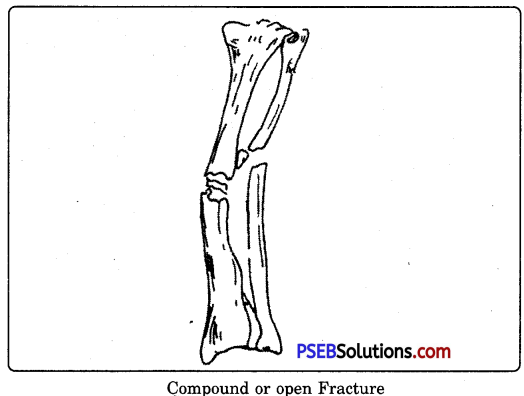 PSEB 9th Class Physical Education Solutions Chapter 4 First Aid 2