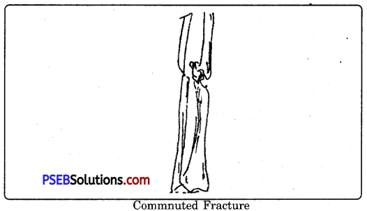 PSEB 9th Class Physical Education Solutions Chapter 4 First Aid 3